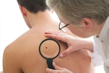 dermatologie tilburg moedervlek