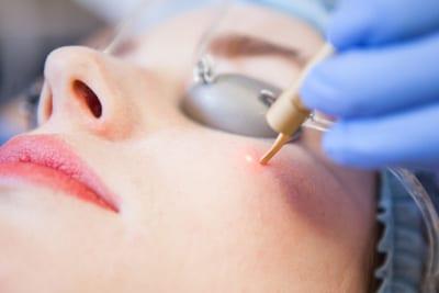 Vaatlaserbehandelingen bij de huidtherapeut